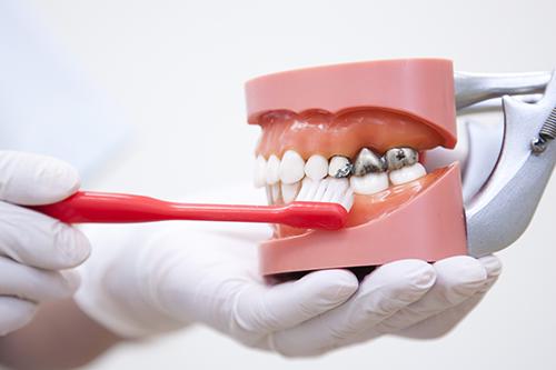 歯の寿命を延ばすための予防に力を入れています