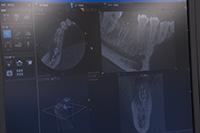 3DのCT画像術前診断