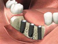 インプラント植立手術