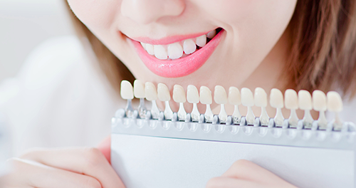 ホワイトニングで白く美しい歯を実現